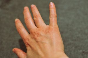 Dry, cracked hands feel and look old (Image:fred_v/flickr)
