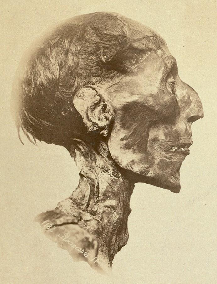 Ramses_II_-_The_mummy