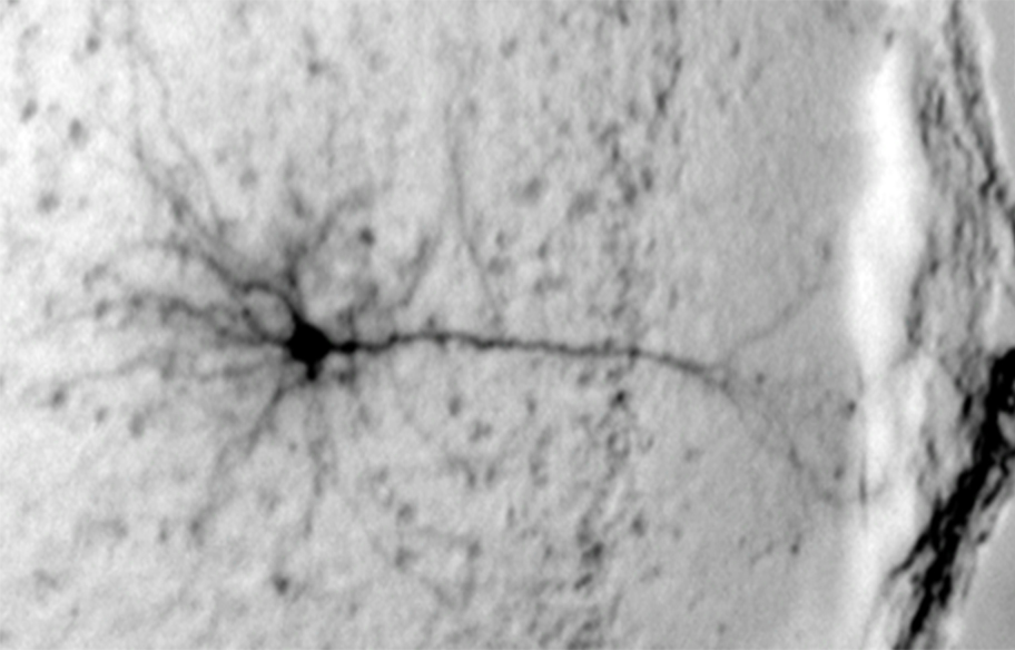 A pyramidal neuron from the prefrontal cortex of a mouse brain. (Neil Harrison and Michael Salling, Columbia University Irving Medical Center)