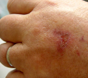 Symptoms include painful blisters, which become darkly pigmented and can cause scars. (Image: Lamiot via flickr CC BY-SA 3.0)