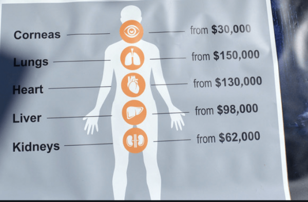 Crop of a Protest Banner, depicting the price at which organs removed by forced organ harvesting from Falun Gong practitioners in China were sold at.