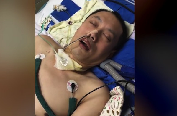 A still from video footage taken of a Falun Gong practitioner Hu Guojian who was in a coma after being tortured. (Image: YouTube/Fox 11)
