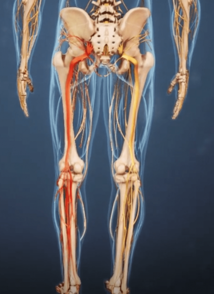 Sciatica is a medical condition characterized by sharp pain and numbness radiating down the sciatic nerve, from the lower back to the buttocks and down the leg. (Image: spine-health.com)