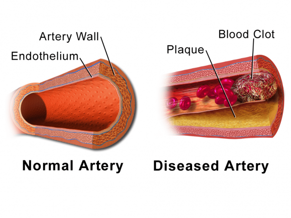 Illustration comparing normal artery vs diseased artery with a blood clot. (Image: Bruce Blaus via wikimedia CC BY 3.0)