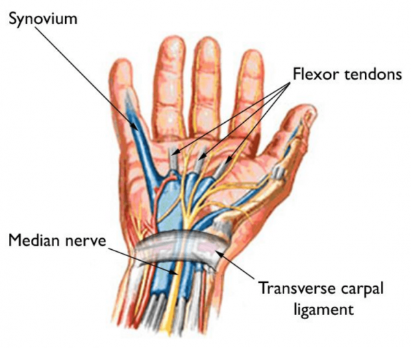 Carpal tunnel syndrome is caused by pressure on the median nerve as it travels through the carpal tunnel. (Image: AAOS)