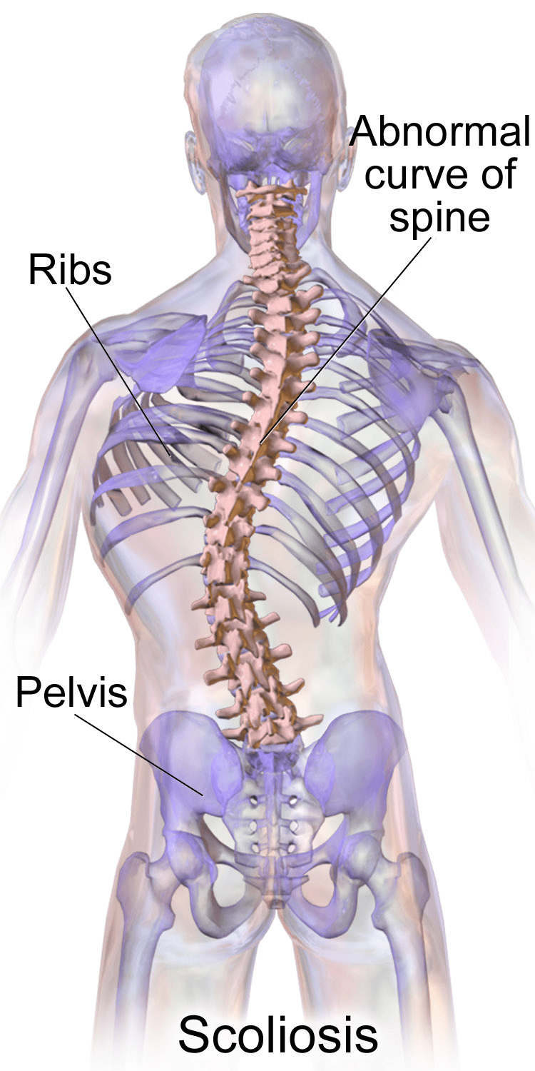 """Scoliosis is a medical condition in which a person's spine has a sideways curve. The curve is usually """"S""""- or """"C""""-shaped over three dimensions. (Image: wikimedia / CC0 1.0)"""