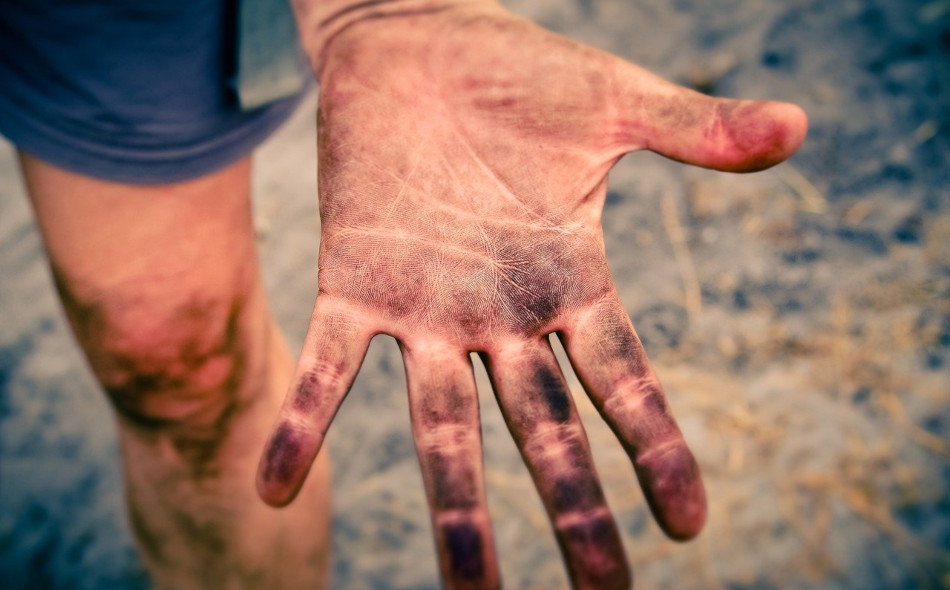 A dirty hand.