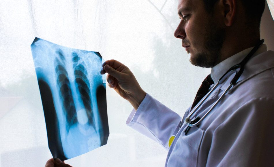 A radiologist examines a chest x-ray.