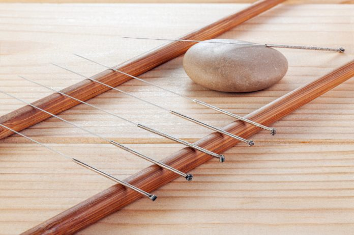 Silver needles for traditional Chinese acupuncture medicine on a wooden table.