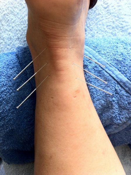 acupuncture needles in ankle of swollen foot