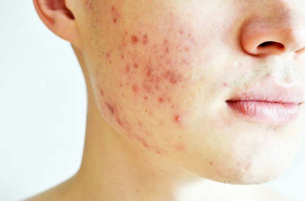 acne_cheeks