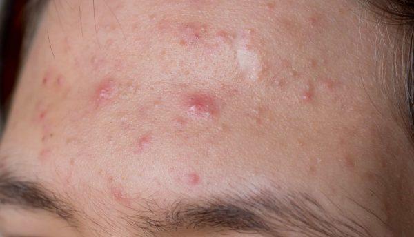 acne_forehead